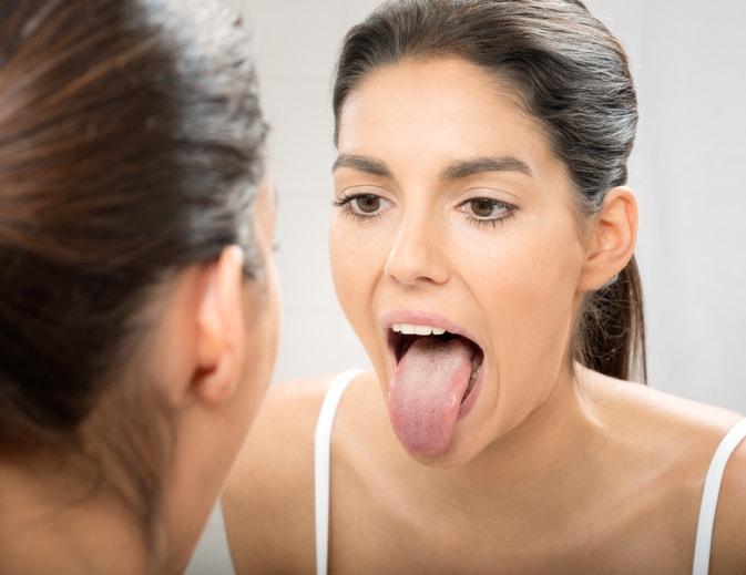 舌の状態を見る